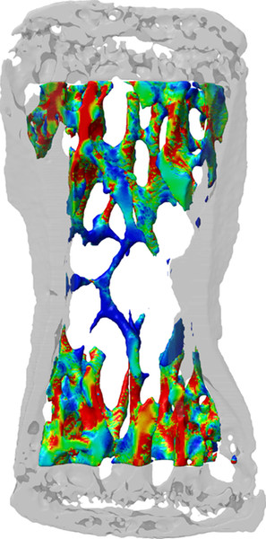 Here, the 3D simulation depicts the stress on the bone tissue, calculated on the basis of CT images. The red areas represent high mechanical stress and bone formation while the blue ones represent low stress and bone resorption.